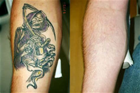 free tattoo removal for military laser removal clinic salutes the brave and