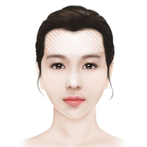 m shaped hairline hairline forehead reduction and correction id hospital