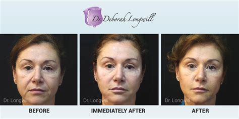 belotero treatment miami center for dermatology cosmetic dermatology