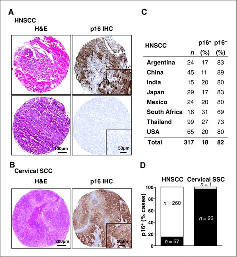 Jasper Cervical Collar Jas Scc mtor as a molecular target in hpv associated and cervical squamous carcinomas clinical