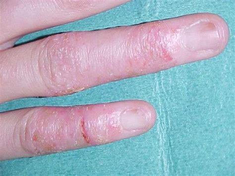 perossido di idrogeno uso interno dermatite cure naturali e rimedi
