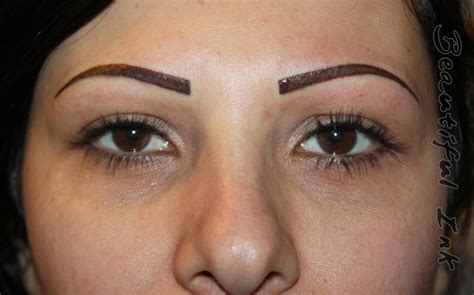 remove eyebrow tattoo removal without scar eyebrow removal before