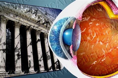 corpi mobili occhio corpi mobili vitreali oculisticatv