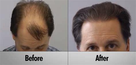 hair transplant cost 2014 hair transplant cost