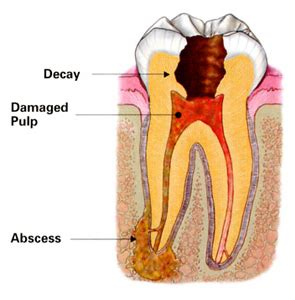 root canal diagram root canal tx endodontist root canal dentist