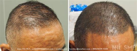 scalp micropigmentation to make hair ticker pictures scalp micropigmentation smp review of eyebrow scar and