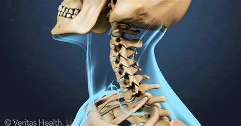 headache after c section spinal types of neck pain