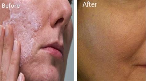 Anti Acne Large Skin Solution it only takes one ingredients to get rid of open and