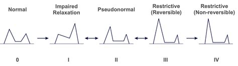 pseudonormal pattern of lv diastolic filling 4 4 how to assess diastolic function 123sonography