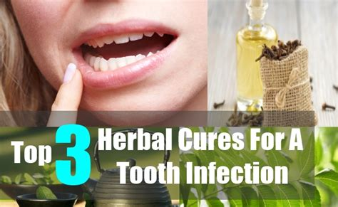 3 tooth infection home remedies cure for a tooth