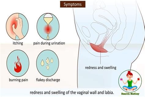 yellow discharge after c section vaginal yeast infection how to treat and cure yeast