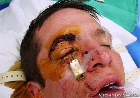 ojo imagenes fuertes videos accidente horrendo anzuelo en el ojo dogguie