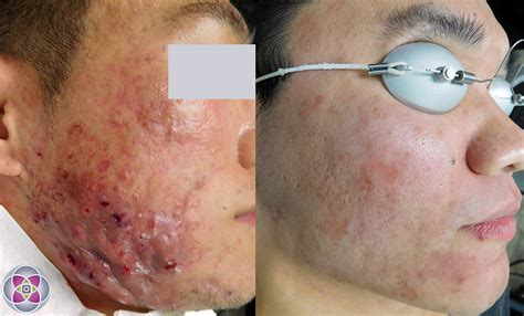 Skincare For The Treatment Of Acne by Laser Treatment For Acne Scars