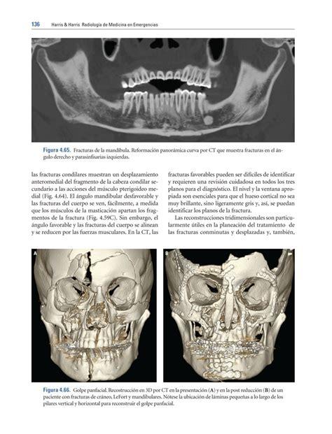 librerias medicas barcelona harris harris radiolog 237 a en emergencias m 233 dicas l