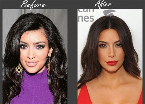 kim kardashian plastic surgery before after pictures 2015 kim kardashian plastic surgery allegations