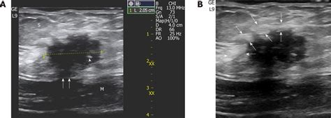 incisional endometriosis after c section reliable clinical and sonographic findings in the