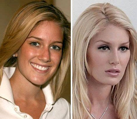 heidi montag without extensions heidi montag before and after plastic surgery plastic
