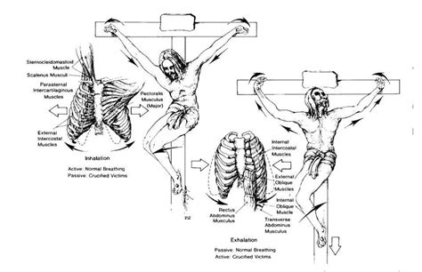 a physicians view of the crucifixion of jesus christ crucifixion death like jesus experienced is medical