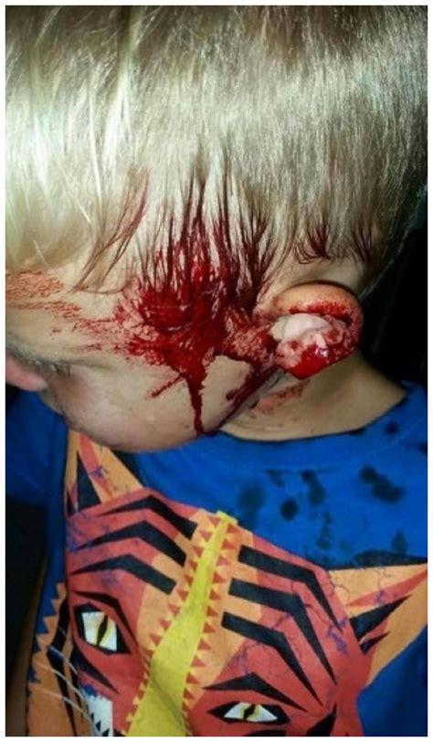 snake bites python for pentesters extremely rare python attacks sleeping boy in australia
