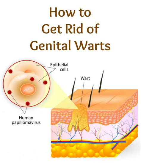 how to get rid of genital warts selfcarer