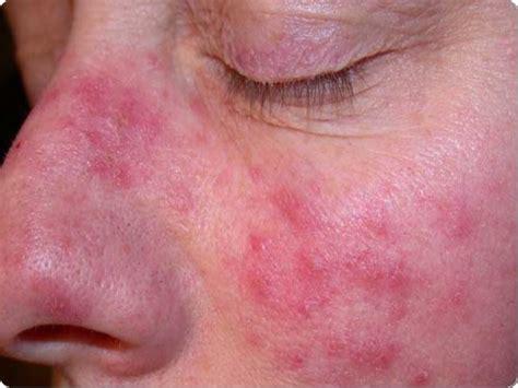 en la piel de 191 c 211 mo prevenir el c 193 ncer de piel