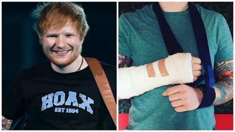 ed sheeran hand ed sheeran has broken his arm while out cycling smooth
