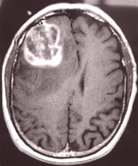 can a brain tumor cause mood swings aans glioblastoma multiforme