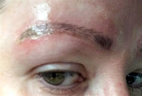 tattoo infection window woman shares pictures of her eyebrows after botched