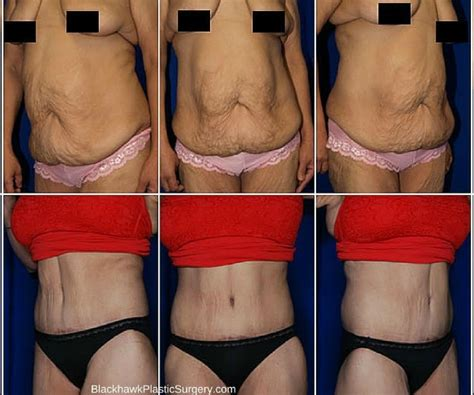 contouring following bariatric surgery and weight loss post bariatric contouring books top 7 plastic surgery procedures for weight loss