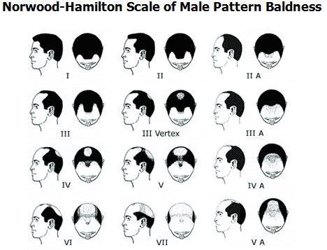 bandage hair shaped pattern baldness 1000 ideas about male pattern baldness on pinterest