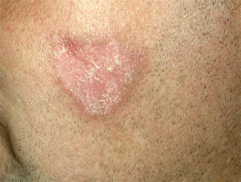 rashes lupus symptoms in women bones quotes
