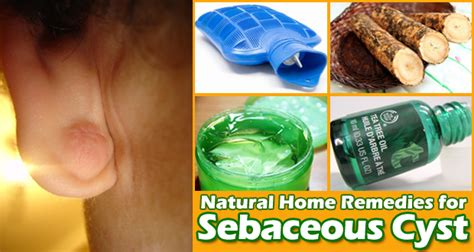 cure for sebaceous cysts brown hairs