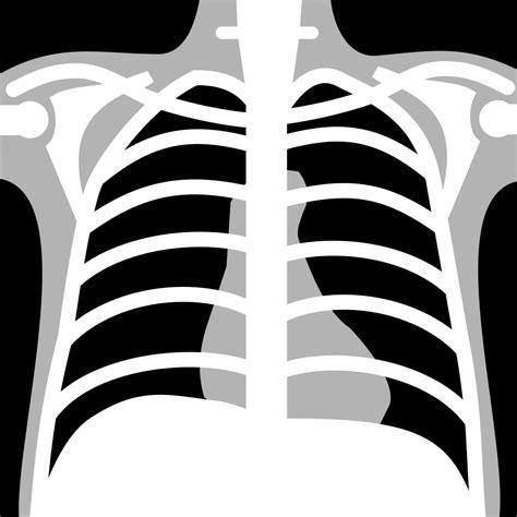 filex rays chest neg iconsvg wikimedia commons