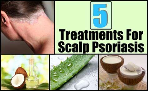 5 best and effective ways for scalp psoriasis treatments