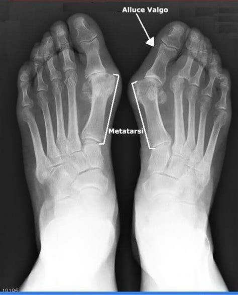 dolore arco plantare interno dolore alla pianta piede o sul dorso all esterno