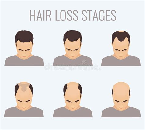 male pattern hair loss current understanding male pattern baldness stages stock illustration