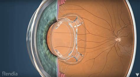 bionic lens   vision  times