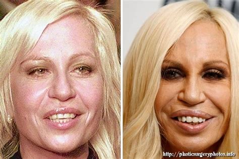 Designer Cosmetic Surgery Craze by 189 Best Plastic Surgery Wrong Images On