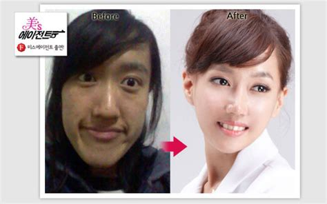 9 korean plastic surgery before and after photos that will