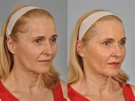 pics if women sgd 56 w cosmetic surgery 174 botox before after photo gallery