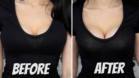 best breast implants to get did get implants page 2 forum