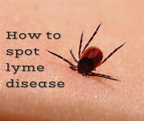 do dogs get lyme disease what to do after a tick bite to prevent lyme disease autos post