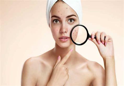 Jerawat Acnes acnes jerawat punggung