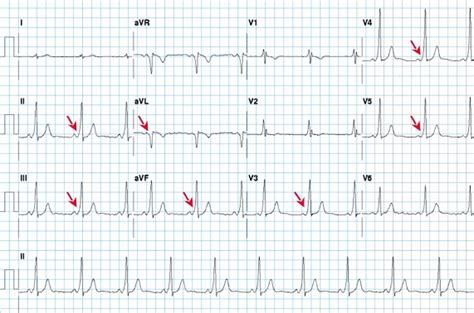 wolff parkinson white pattern ecg preexcitation syndromes wpw and lgl syndrome causes