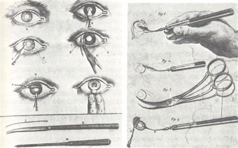 couching cataract surgery cataract history