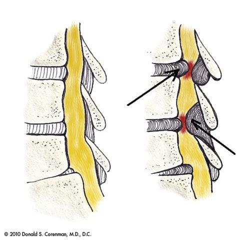 spinal stenosis diagram lumbar spinal stenosis central stenosis dr corenman