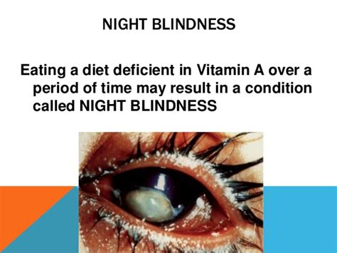 Vitamin A Blindness physio knowledge blindness