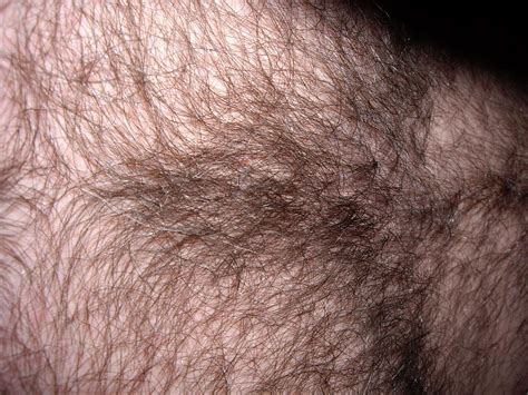 epilation pubis file brusthaare jpg wikimedia commons