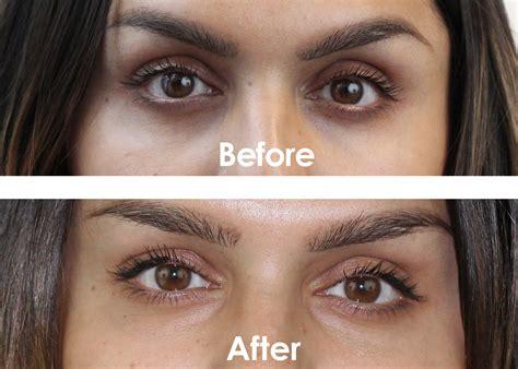 black under eye beauty treatments for dark circles under eye treatment