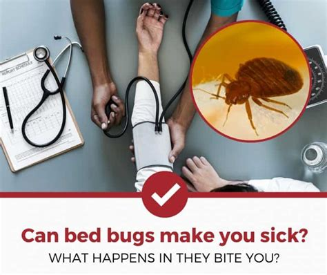 can bed bug bites make you sick can bed bugs make you sick 3 things you should know